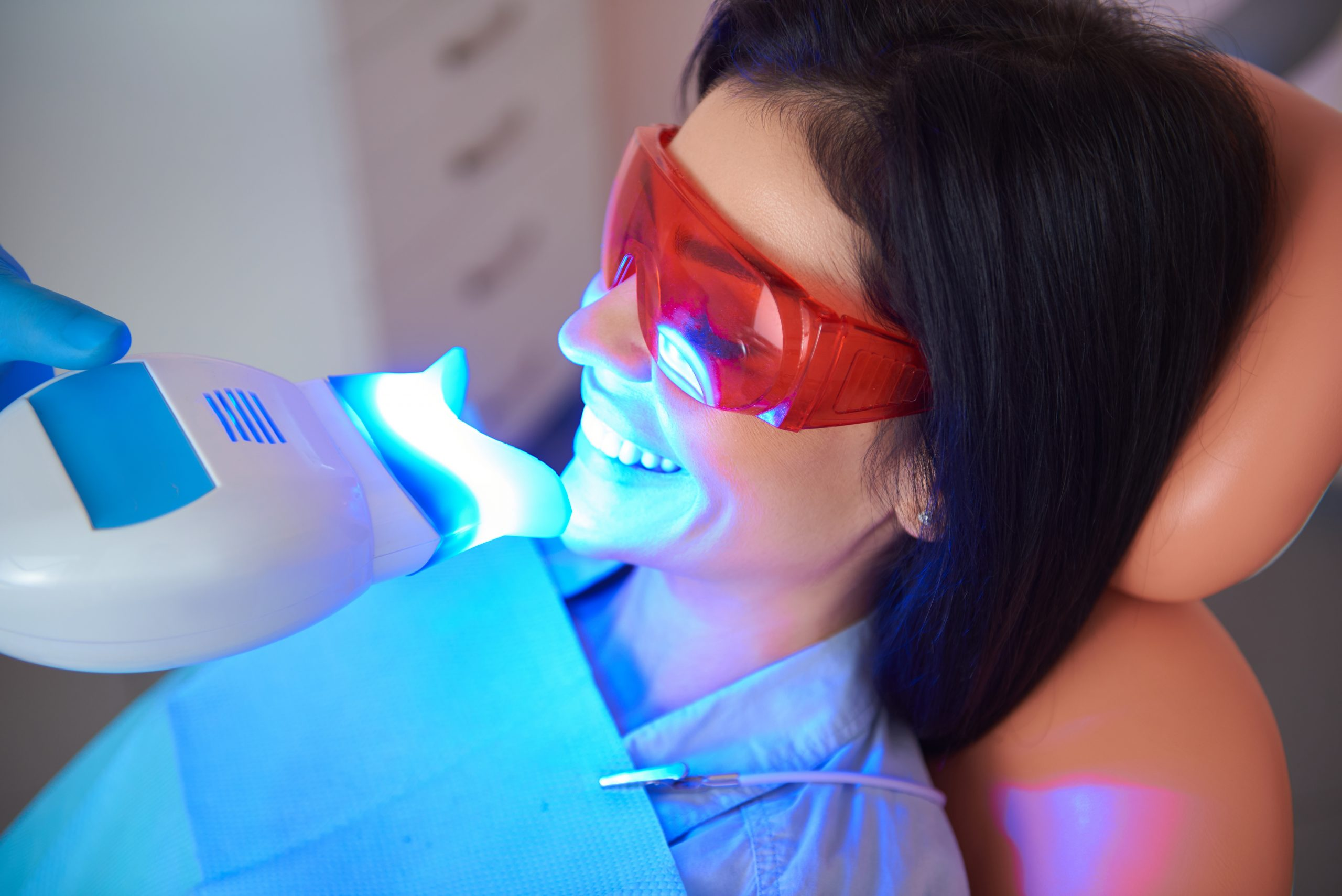 How to Find the Best Professional Teeth Whitening